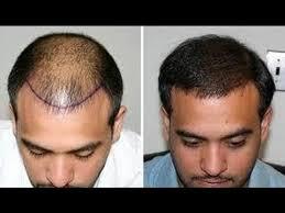 Gyorsan fejlődik a Greffe de cheveux